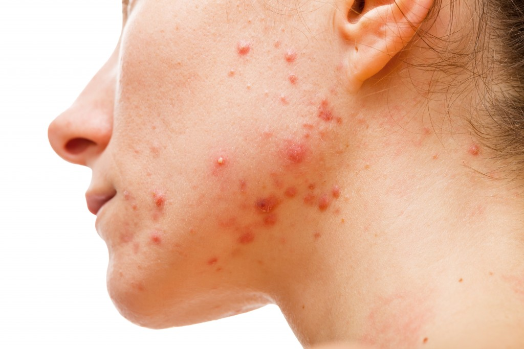 Woman with acne closeup